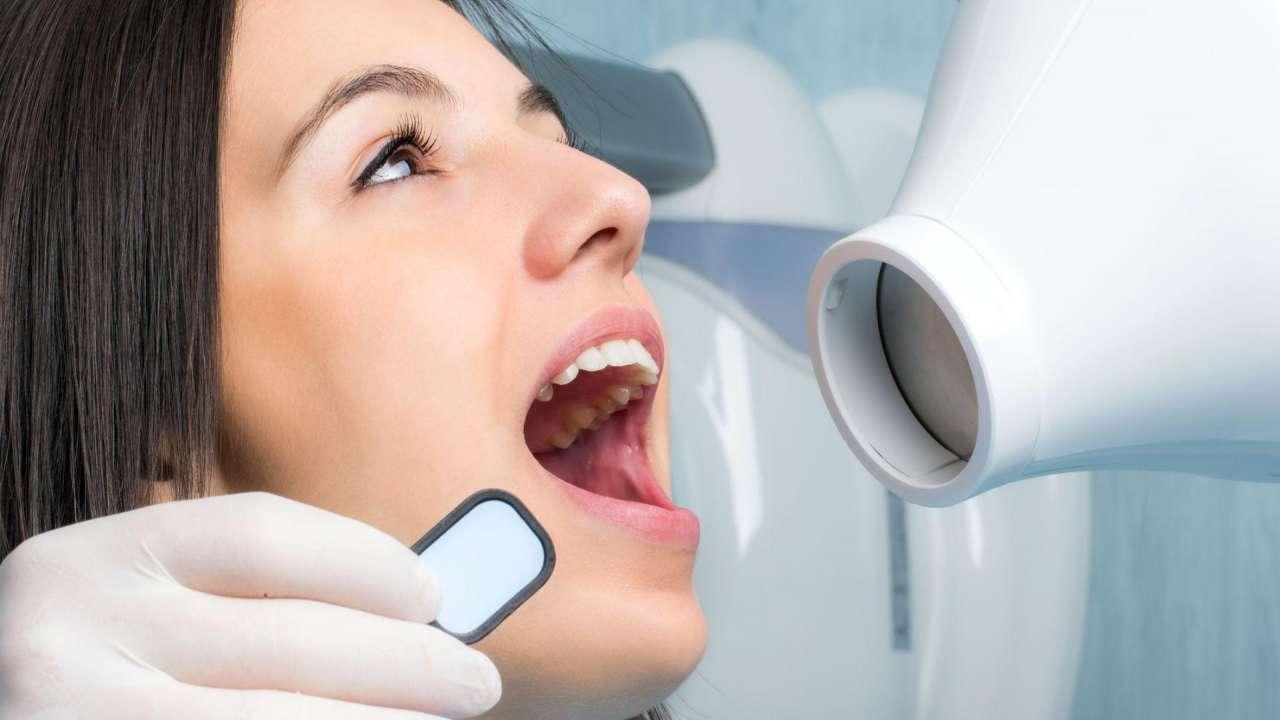 Dental xray three